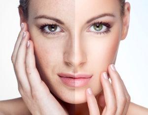 Trẻ hóa da với công nghệ RF