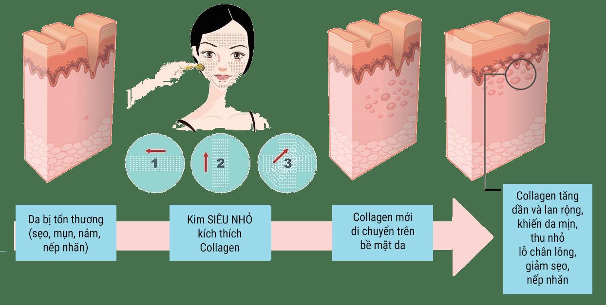 tế bào gốc, te bao goc, lan kim te bao goc, lăn kim tế bào gốc, lăn kim, lan kim