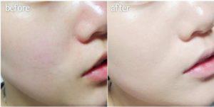 Trước và Sau Khi Sử Dụng Serum Căng Bóng