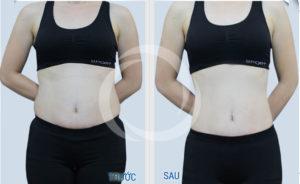 Hiệu quả điều trị bằng máy giảm béo Lipo Hifu