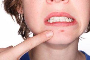 Mụn Mọc Ở Miệng Và Cằm Cảnh Báo Tình Trạng Sức Khỏe Của Ruột Già Và Ruột Non