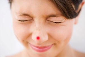 Mụn Mọc trên Mũi cảnh báo bạn có thể bị Stress