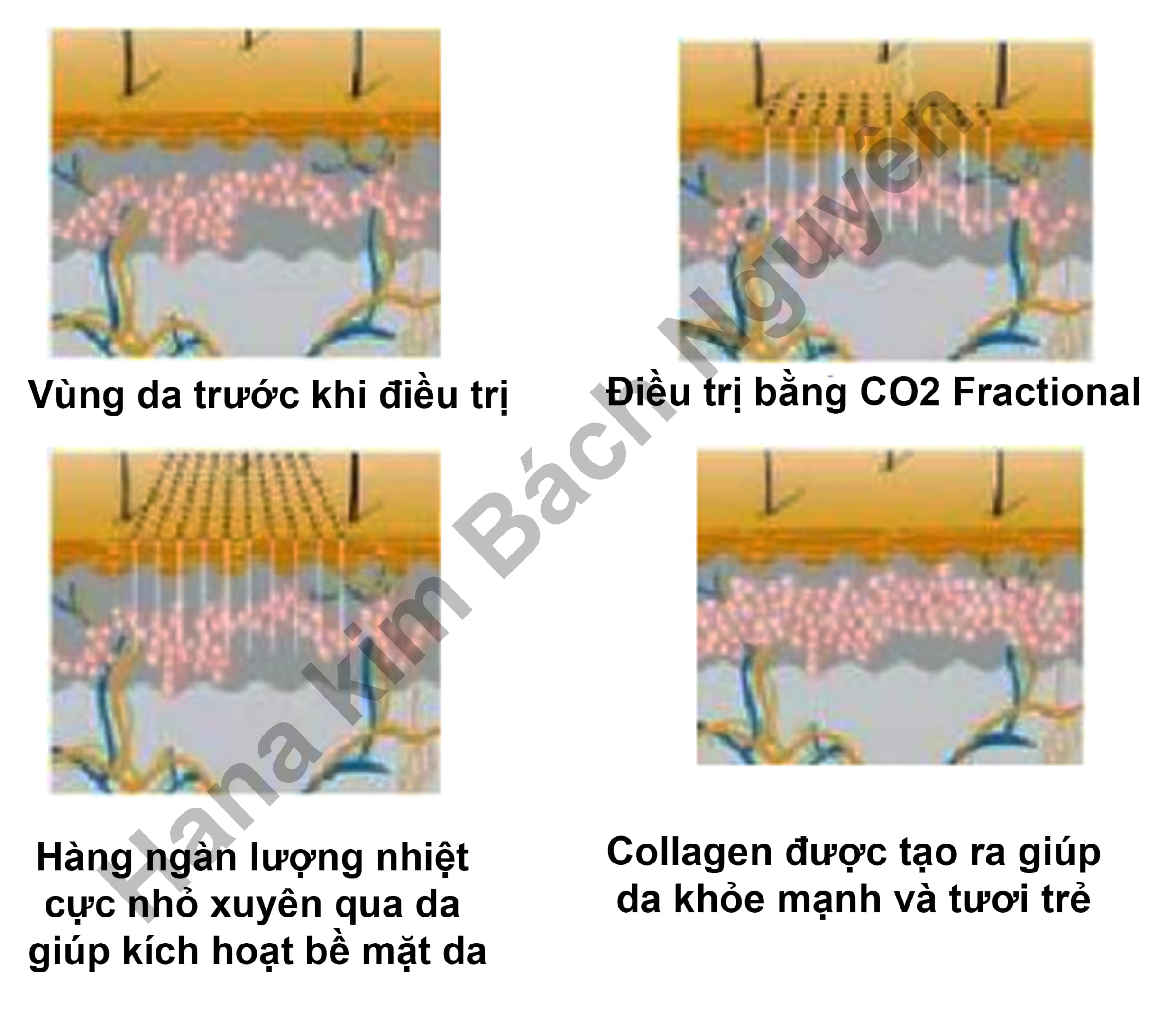 may laser co2, máy trị mụn rỗ, may laser co2 fractional