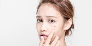 uong-sua-co-gay-noi-mun-khong-1_800x400