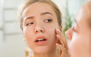 các triệu chứng của làn da khô