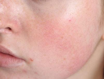Dấu hiệu của da nhiễm corticoid nặng