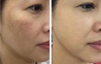 Trước và sau điều trị nám tại spa