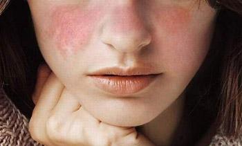 Dấu hiệu của lupus ban đỏ trên da