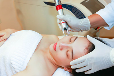 Máy xóa sắc tố da tại spa
