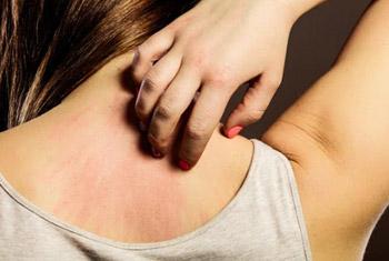 triệu chứng viêm da dị ứng