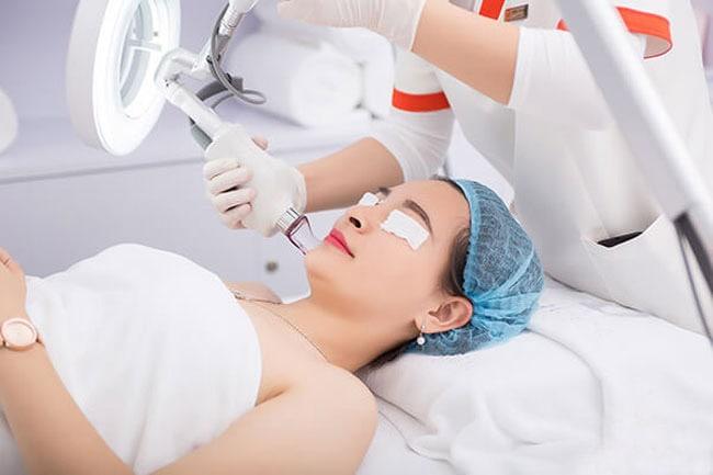 Chăm sóc da khi điều trị sẹo rỗ