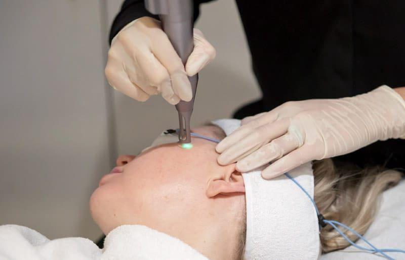 chăm sóc da sau khi điều trị tàn nhang bằng laser
