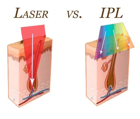 Sự khác nhau về hiệu quả giữa Laser và IPL