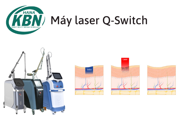 Máy laser q-switched