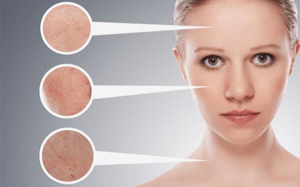 Làm thế nào để biết tình trạng thật của da?
