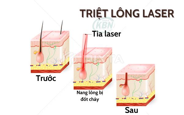 Phương thức hoạt động của máy triệt lông laser