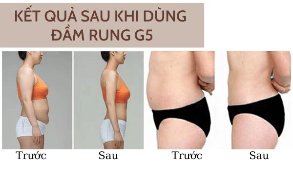 Hình ảnh thật sau khi dùng máy giảm béo G5