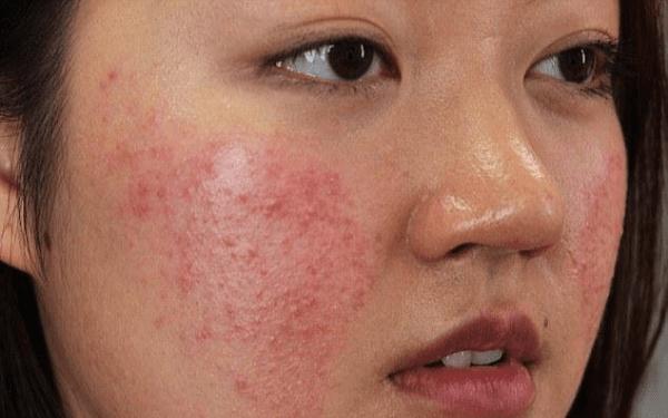Hình ảnh da bị dị ứng mỹ phẩm