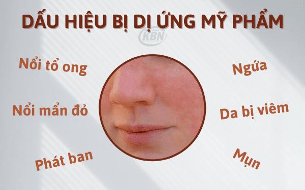 Các dấu hiệu khi da bị dị ứng mỹ phẩm