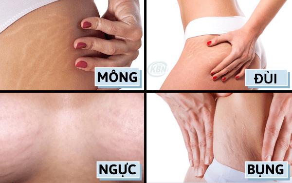 Rạn da thường xuất hiện ở vùng bụng, đùi, mông, ngực