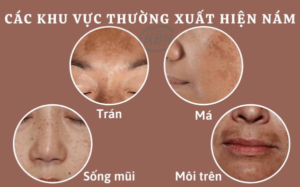 Các vùng trên mặt thường xuất hiện nám da