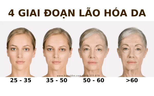 4 cấp độ lão hóa da