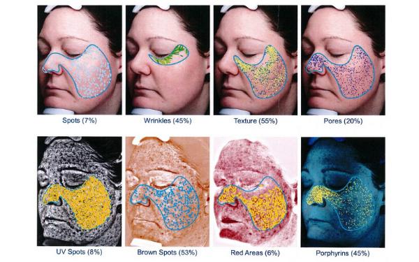 Hình ảnh một số vấn đề mà máy phân tích da sẽ giúp phân tích và chuẩn đoán