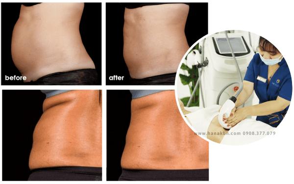 Kết quả trước và sau khi dùng công nghệ giảm béo Max Burn Lipo Tech