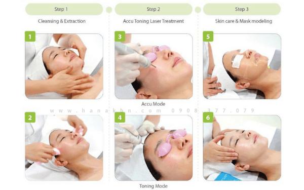 Các bước chăm sóc da bằng máy Laser Accu Toning