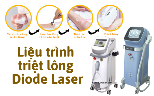 Liệu trình triệt lông Diode Laser và máy triệt lông laser hiệu quả hiện nay