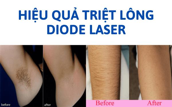 Hiệu quả triệt lông bằng laser trước - sau