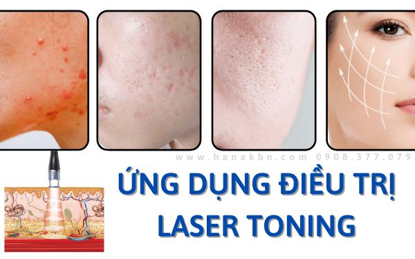 Ứng dụng điều trị công nghệ laser toning trong làm đẹp
