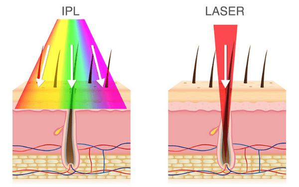 So sánh công nghệ triệt lông IPL và Laser